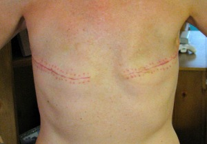 My scars should look similar to this