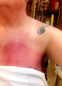 Shot of part of the chest burn, just a few days from the end