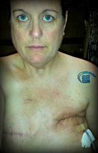 The aftermath of multiple surgeries, implants, and infection
